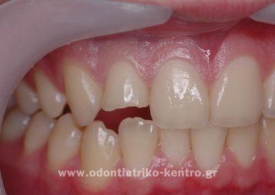 Bonding - Ανασυστάσεις Δοντιών