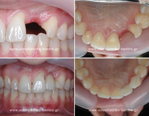 All-ceramic crowns & bridges