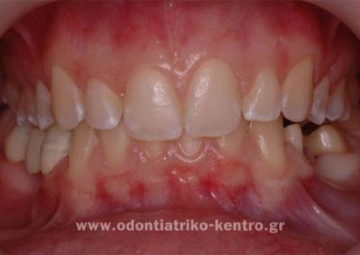 Αρχική κατάσταση (τροχισμός δοντιών)