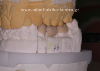 Τοποθέτηση κεραμικού στο σκελετό της ζιρκονίας