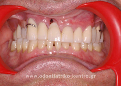 Προσωρινή αποκατάσταση με ακρυλική γέφυρα & μερική οδοντοστοιχία με άγκιστρα