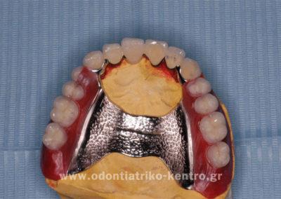 Κατασκευή μερικής οδοντοστοιχίας