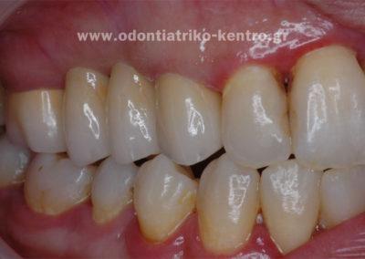 Χρωματική απομίμηση φυσικών δοντιών