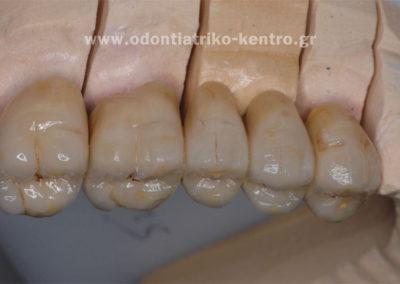 Χρωματική & επιφανειακή απομίμηση φυσικών δοντιών