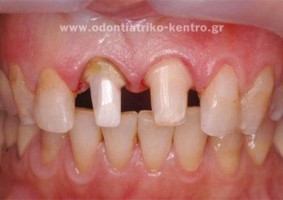 Τροχισμός δοντιών