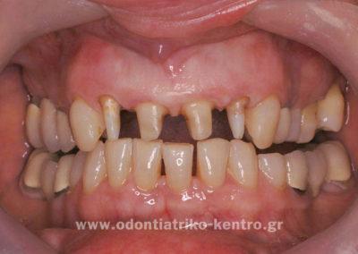 Ανασυστάσεις & τροχισμός των δοντιών