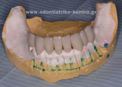 Προσωρινή μεταλοακρυλική γέφυρα κάτω προσθίων δοντιών