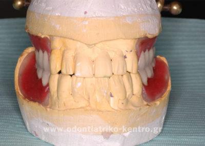 Κατασκευή προσωρινών μερικών οδοντοστοιχιών με άγκιστρα