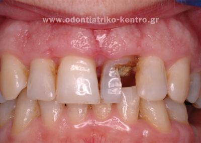 Απονεύρωση του δοντιού