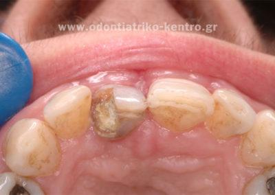 Επιμήκυνση δοντιού