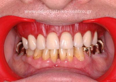 Προσωρινή άνω ολική οδοντοστοιχία