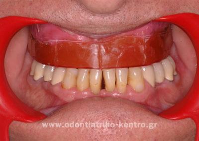 Πρόβα βάσης επένθετης ολικής οδοντοστοιχίας