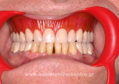 Πρόβα τεχνιτών δοντιών επένθετης ολικής οδοντοστοιχίας
