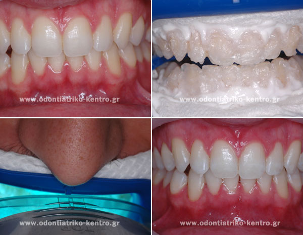 Whitening of natural teeth